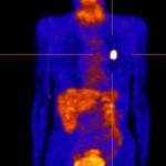 PET: Intensiver Zuckerverbrauch im Bereich eines Lungentumors links.